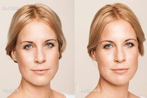 Faltenbehandlung-Hyaluronsäure-und-Botox
